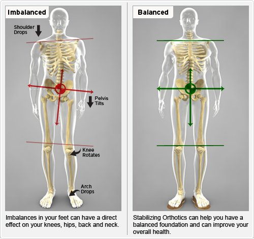 Problems caused or aggravated by a short leg-xBalance_Imbalance_body.jpg.pagespeed.ic.9CoM2EZfUI